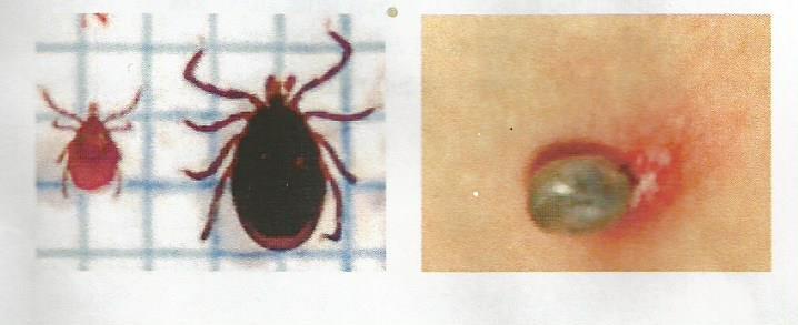 À gauche aspect d'une tique / à droite la tique après morsure